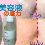 韓国美容液で美白になるか約1ヶ月検証!ガラクトミー&ナイアシンエッセンス does Korean whitening essence really make my skin brighter?