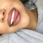 牙齒美白「超強秘笈」讓你在家5分鐘也能輕鬆變漂亮! | Oliver Boyce