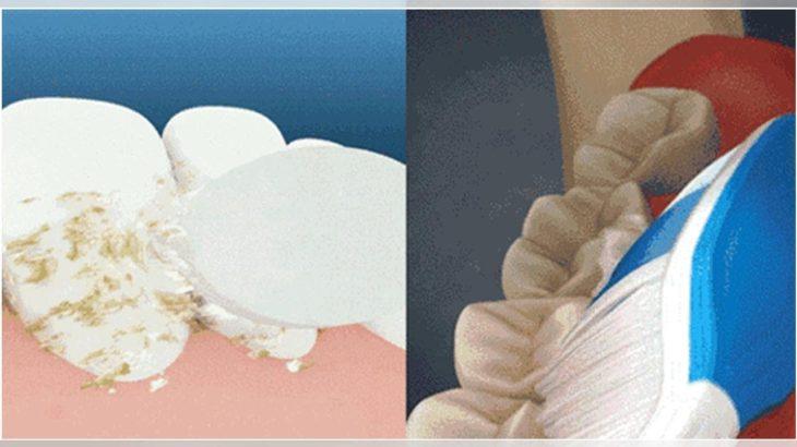 如何煉成一口美白好牙