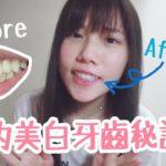 我的美白牙齒秘訣和心得 | 非廣告冇贊助