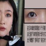在日本做了一个双眼皮 八个月反馈 美白针?热玛吉?自己的医美计划