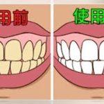 不用砸大錢也能美白牙齒!7種在家就能做的天然療法,從此告別羞人的大黃牙! | Kusi TV
