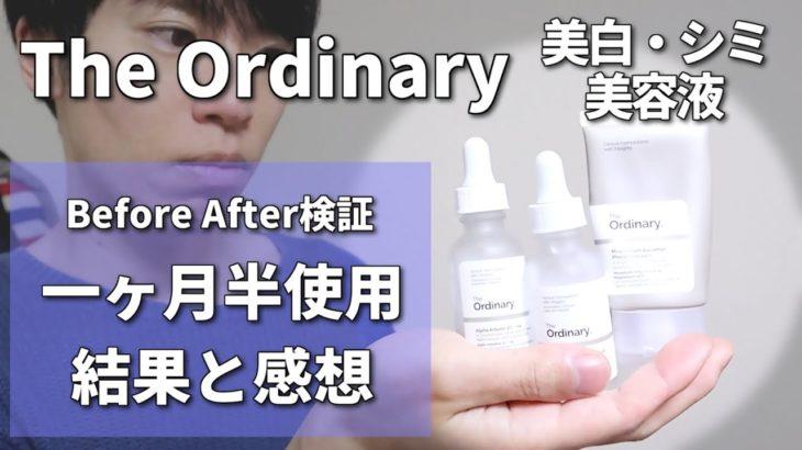 【The Ordinary】美白・シミ対策の美容液を検証レビュー【1ヶ月半使用】