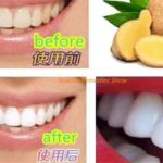 In Two Minutes Dirty Yellow Teeth Whitening 2分钟美白牙齿去牙垢Whiten Brow Teeth at Home  Magical fast whiten