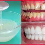 這是在家里美白牙齒的最佳方法,因為它所帶來的效果是最佳的