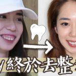終於去整牙🦷😁陶瓷美白貼片經驗分享 // Chen Lily