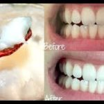 美白牙膏根本沒用?最厲害的其實就在你身邊,這種天然良方太好用了!