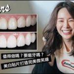 陶瓷美白貼片全記錄 || 超薄超美微笑線|要磨牙嗎?值得做嗎?|My Venners Vlog