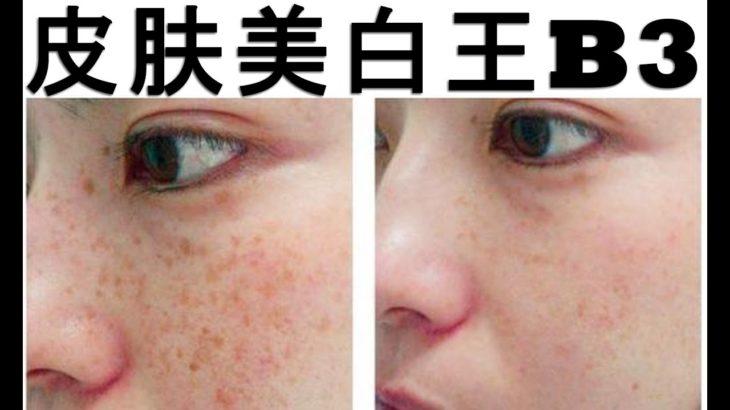 皮肤美白王维生素B3绝不受太阳的影响其美白效果。