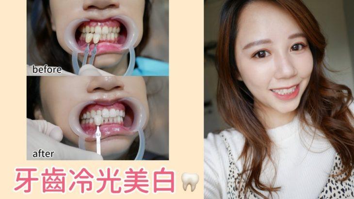 黃板牙再見!!牙齒美白分享✨冷光美白全記錄|Hanna S.哈娜