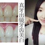 无聊girl用刚拔的智齿做牙齿美白实验+拔牙经历唠嗑【精分朱】